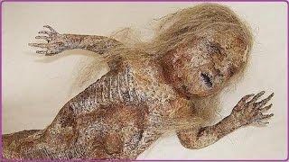 Human Snake Baby found